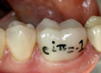 euler's identity on a porcelain crown in janet galore's mouth